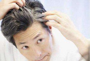 肾虚脱发可以再生吗?如何预防脱发?