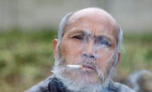 吸烟会让男人阳痿吗?为何吸烟会引发阳痿?