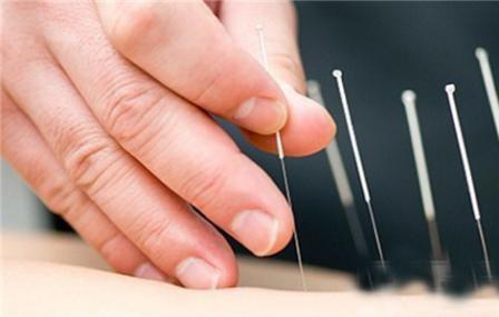针灸可以治疗阳痿吗?针灸治疗阳痿的方法