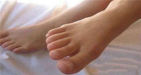 判断是不是肾虚,看看你的脚趾就知道了
