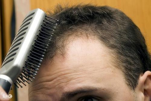 肾虚脱发怎么办?肾虚脱发的治疗方法是什么?